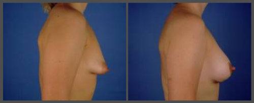 Tubular Breast Deformity Corrected with Saline Augmentation