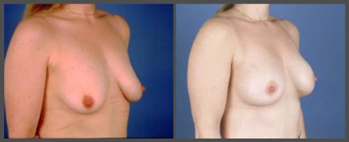 Breast Lift With Small Implant