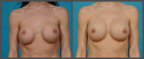 Secondary Breast Augmentation For Repair Of Bottoming Of Implants