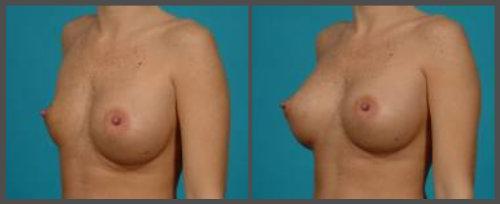 Breast Implant Deflation