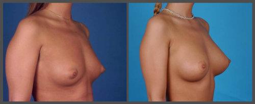 Breast Augmentation - Dr. Hobar
