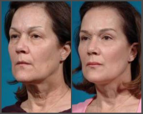 Face-lift - Dr. Hobar