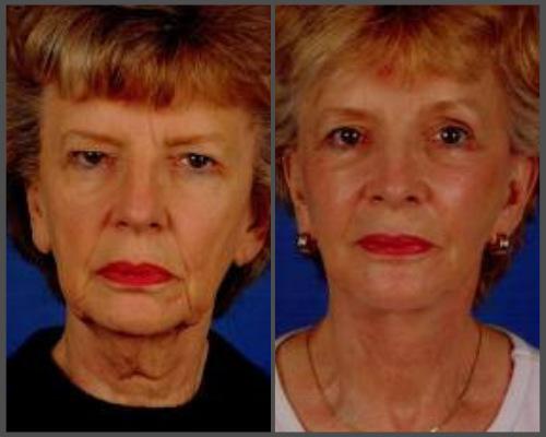 Facelift - Dr. Hobar
