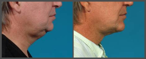 Lower Face and Neck Lift - Dr. Hobar