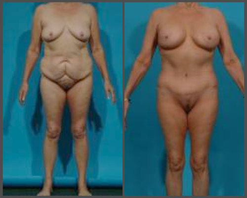 Mommy Makeover, Tummy Tuck and Breast Lift