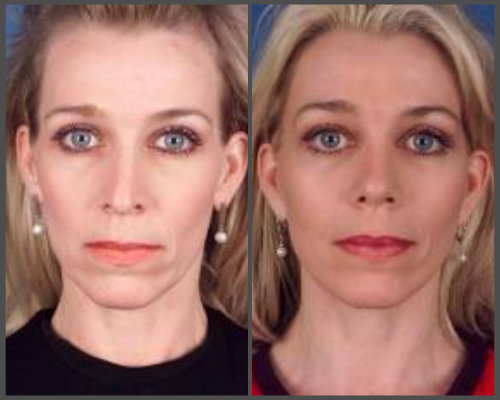 Dr. Hobar - Rhinoplasty and Facelift