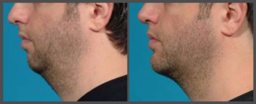Dr. Hobar - Rhinoplasty and Chin Surgery