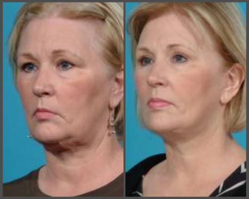 Secondary Facial Rejuvenation